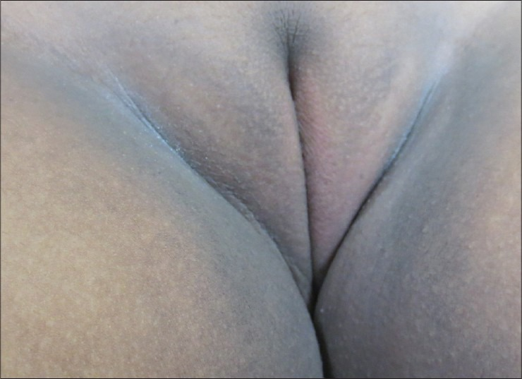 Acanthosis-Nigricans-Groin