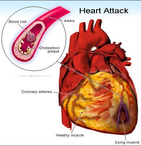 Heart Attack due to Cholesterol Plaque