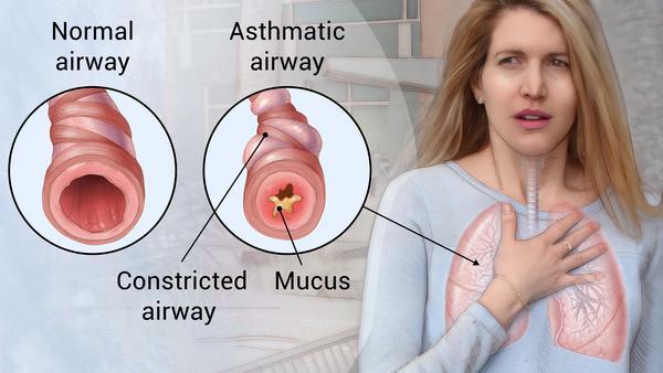 Omega-3 & Asthma